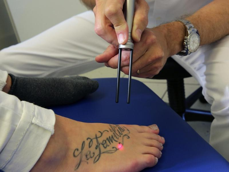 Bild zu Tattoo wird entfernt