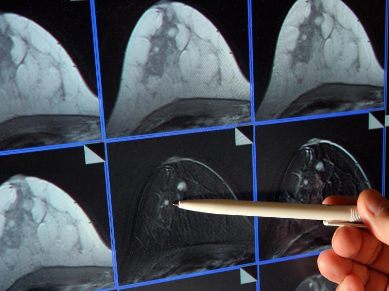 Bild zu Mammografie-Screening