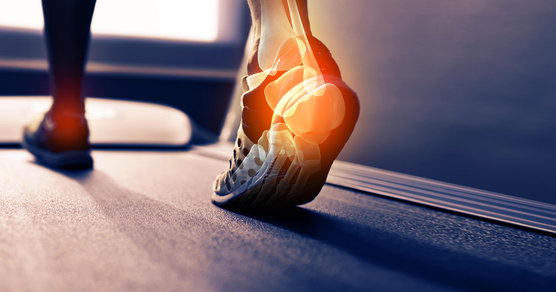 Bild zu Fußschmerzen