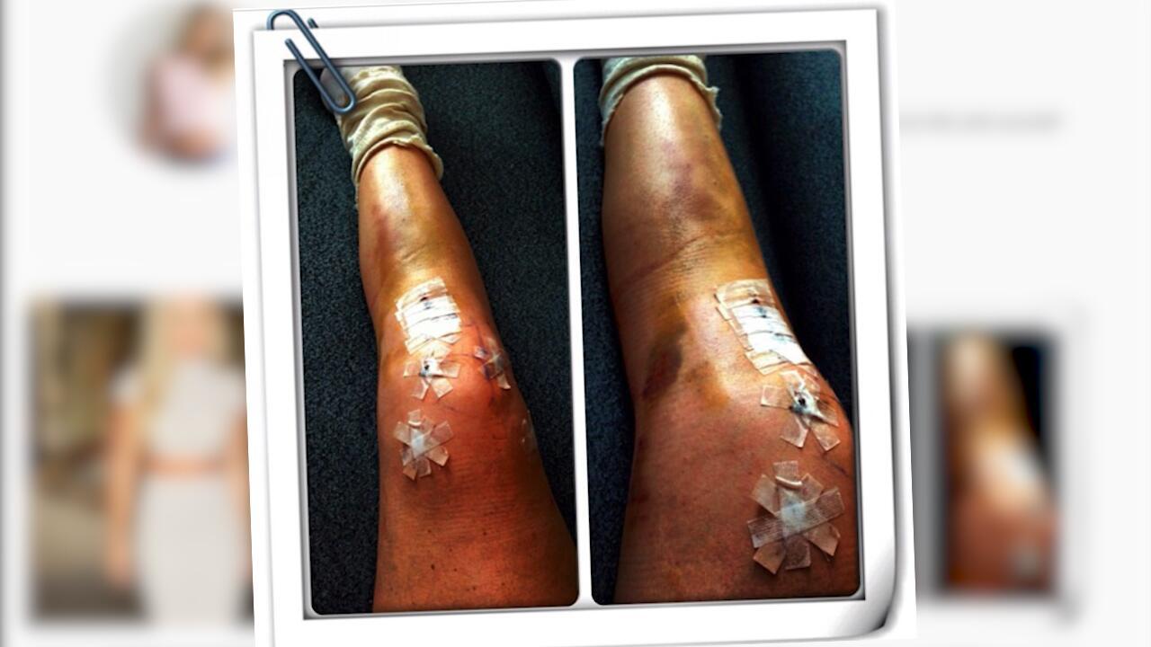 Bild zu Schockfoto: Olympionikin Lindsey Vonn zeigt ihre verletzten Beine bei Instagram
