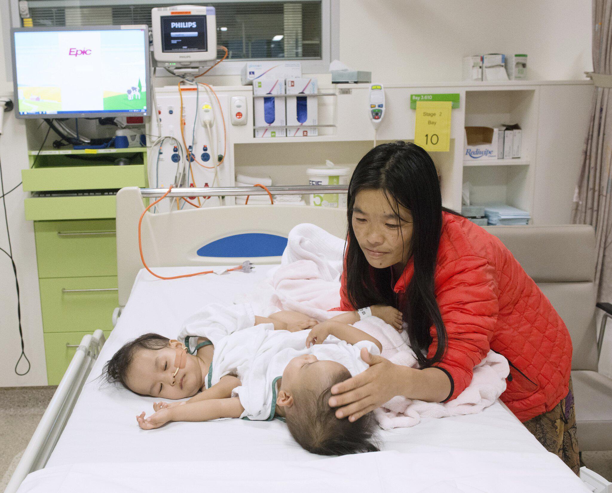 Bild zu Ärzte wollen siamesische Zwillinge aus Bhutan trennen