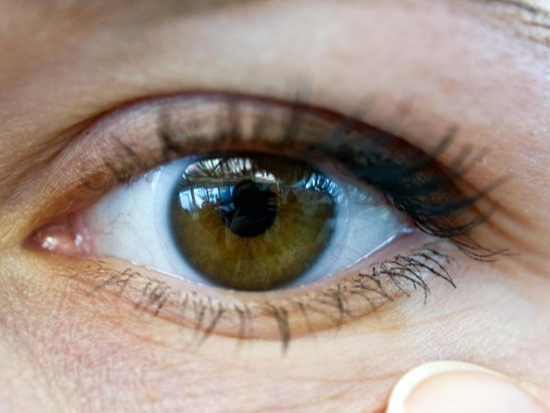 Bild zu Lästiges Augenzucken