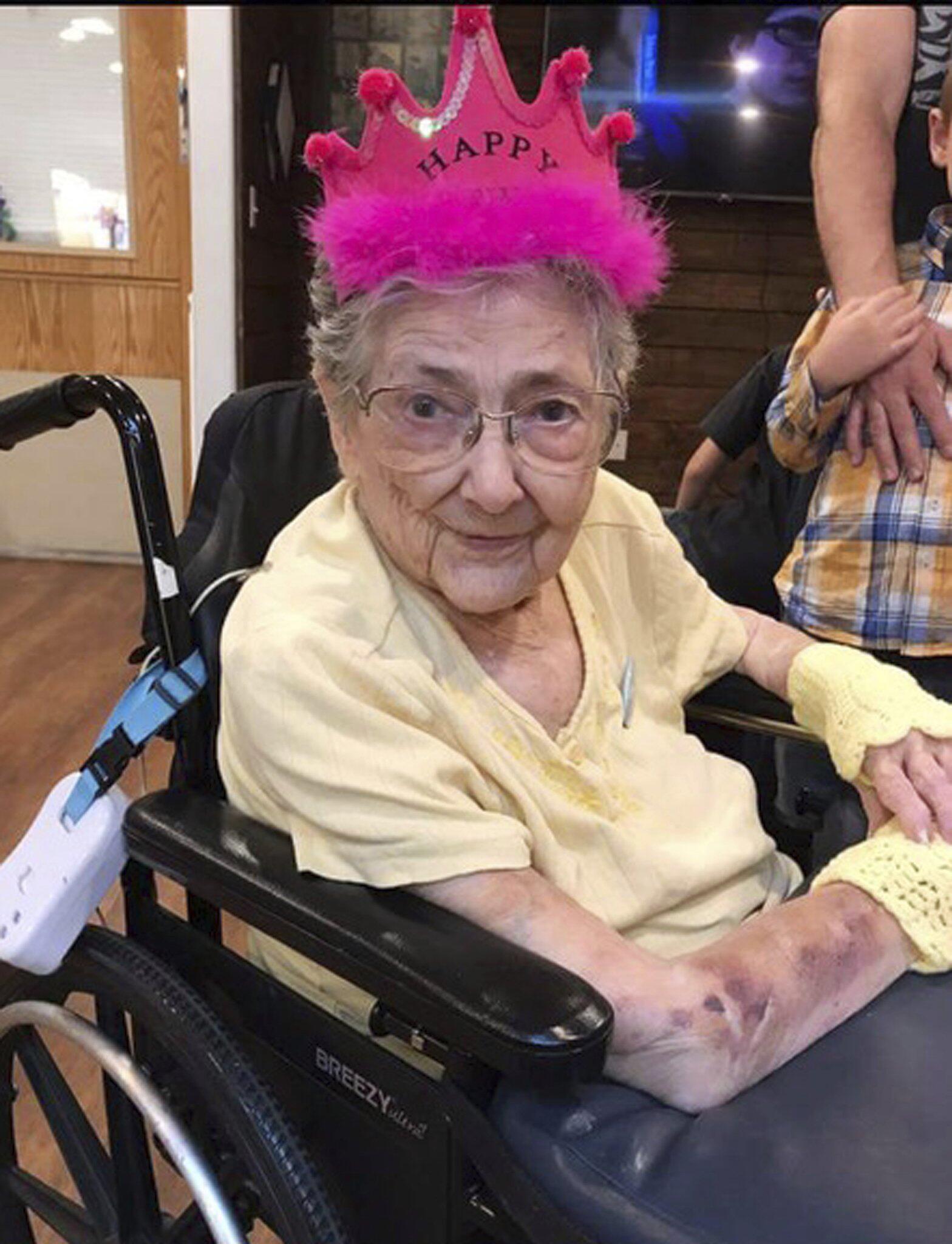 Bild zu Frau lebte 99 Jahre mit Organen auf falscher Seite